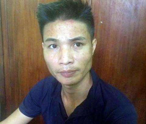 Bảo vệ ăn cắp dây cáp điện ở Vĩnh Yên