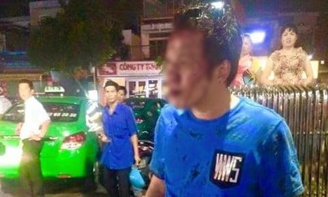 Mâu thuẫn lúc gửi xe nam thanh niên bị bảo vệ đánh hội đồng